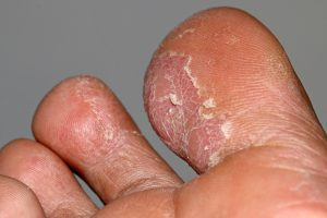 Can Boots Cause Athlete's Foot?